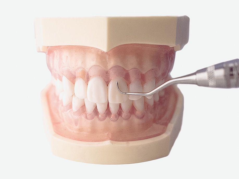 漏 歯槽 治療 膿 歯を抜かずに歯槽膿漏(歯周病)を治療する3つのステップと薬の効果